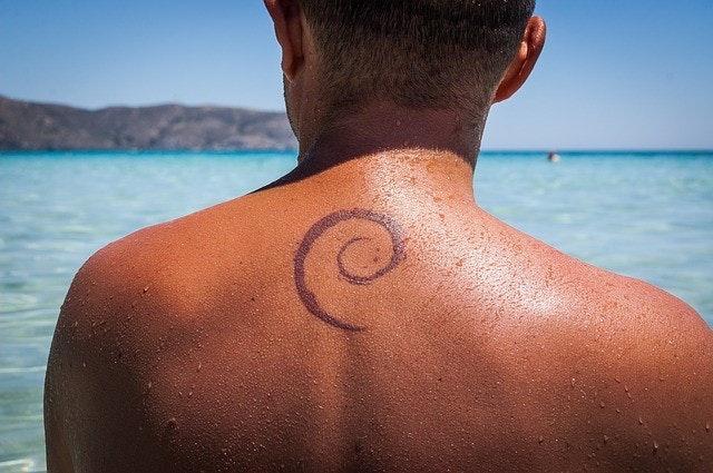 タトゥー除去の種類